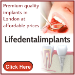 Dental Implants London
